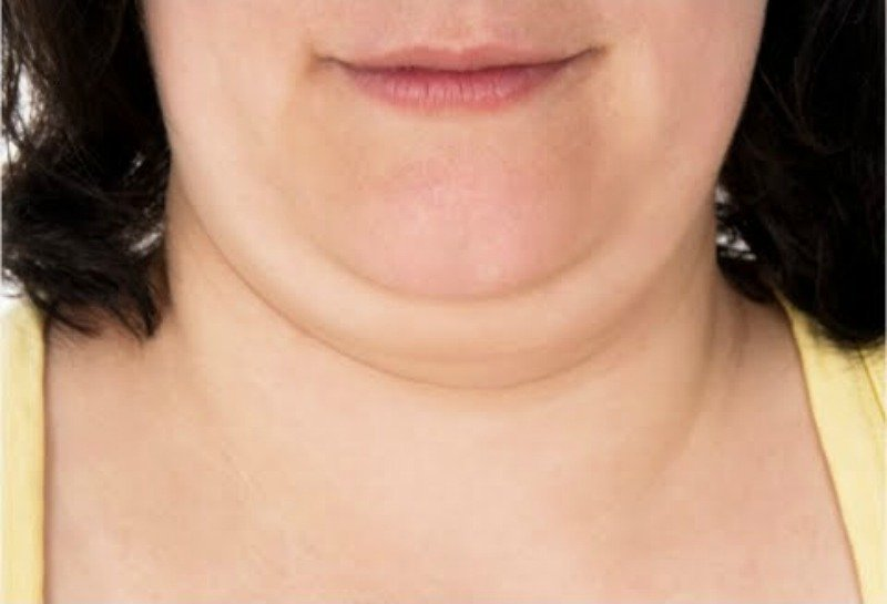 New Injection Promises To Dissolve Your Double Chin