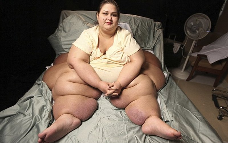 10 Shocking Cases When Being Too Fat Gets In The Way