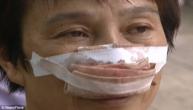 Husband Bites His Wife's Nose Off And Then Eats It