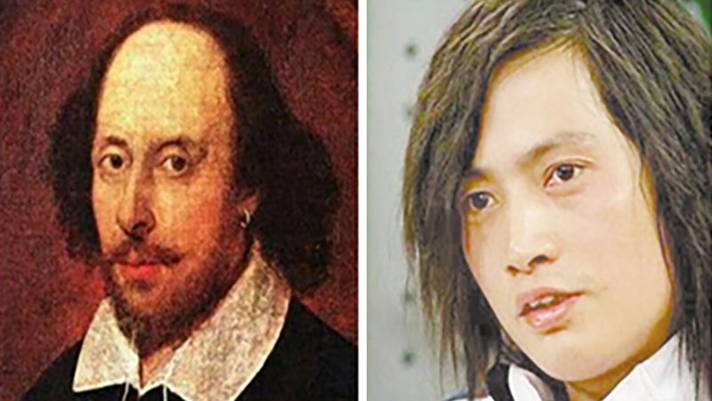 Man Spends £151,000 On Operations To Look Like William Shakespeare